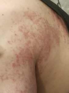 shingles rash crusted over