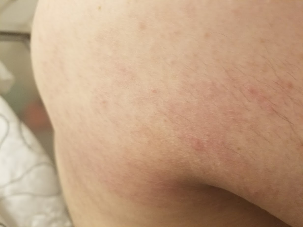 shingles rash virus